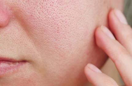 セルラッシュプレミアムの肌荒れの危険は?