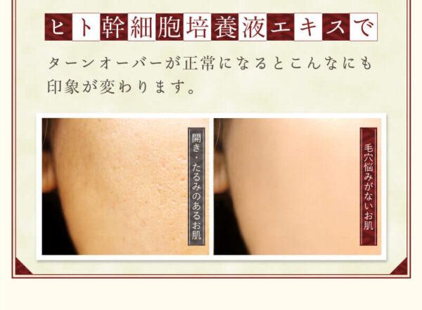 とてたま洗ひ肌 副作用1